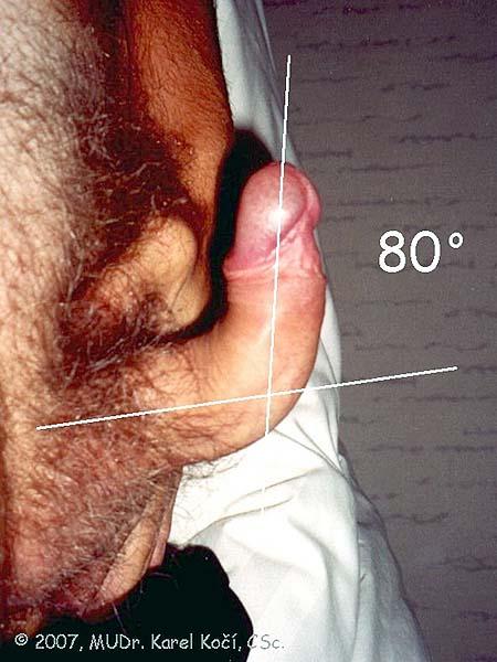 zakřivení masáž styk